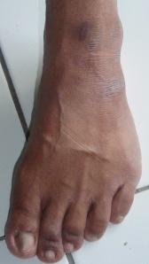 bekas luka detoks di pergelangan kaki